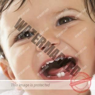 عوارض از دست رفتن زودهنگام دندان شیری