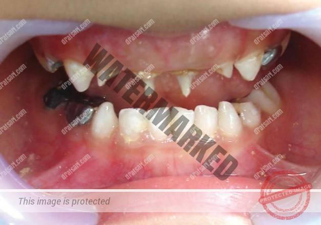 از دست رفتن زود هنگام دندان شیری