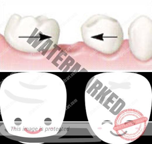 فضانگهدار بهترین گزینه برای حفظ فاصلهی بین دندانها