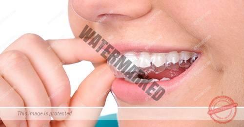 رفع کجی دندانها