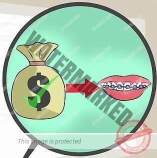 عوامل موثر روی هزینه درمان ارتودنسی