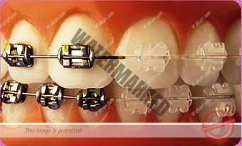 درمان ارتودنسی و دندانپزشکی زیبایی