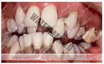 فشردگی دندان ها