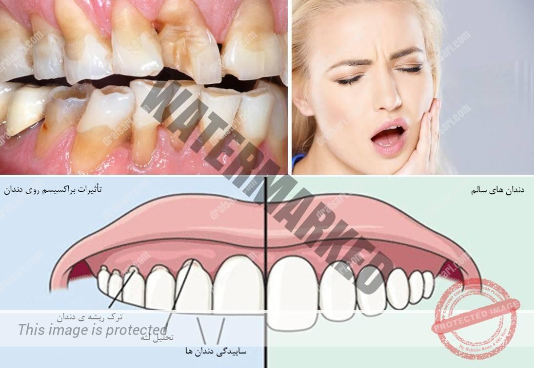 دندان قروچه در کودکان و بزرگسالان