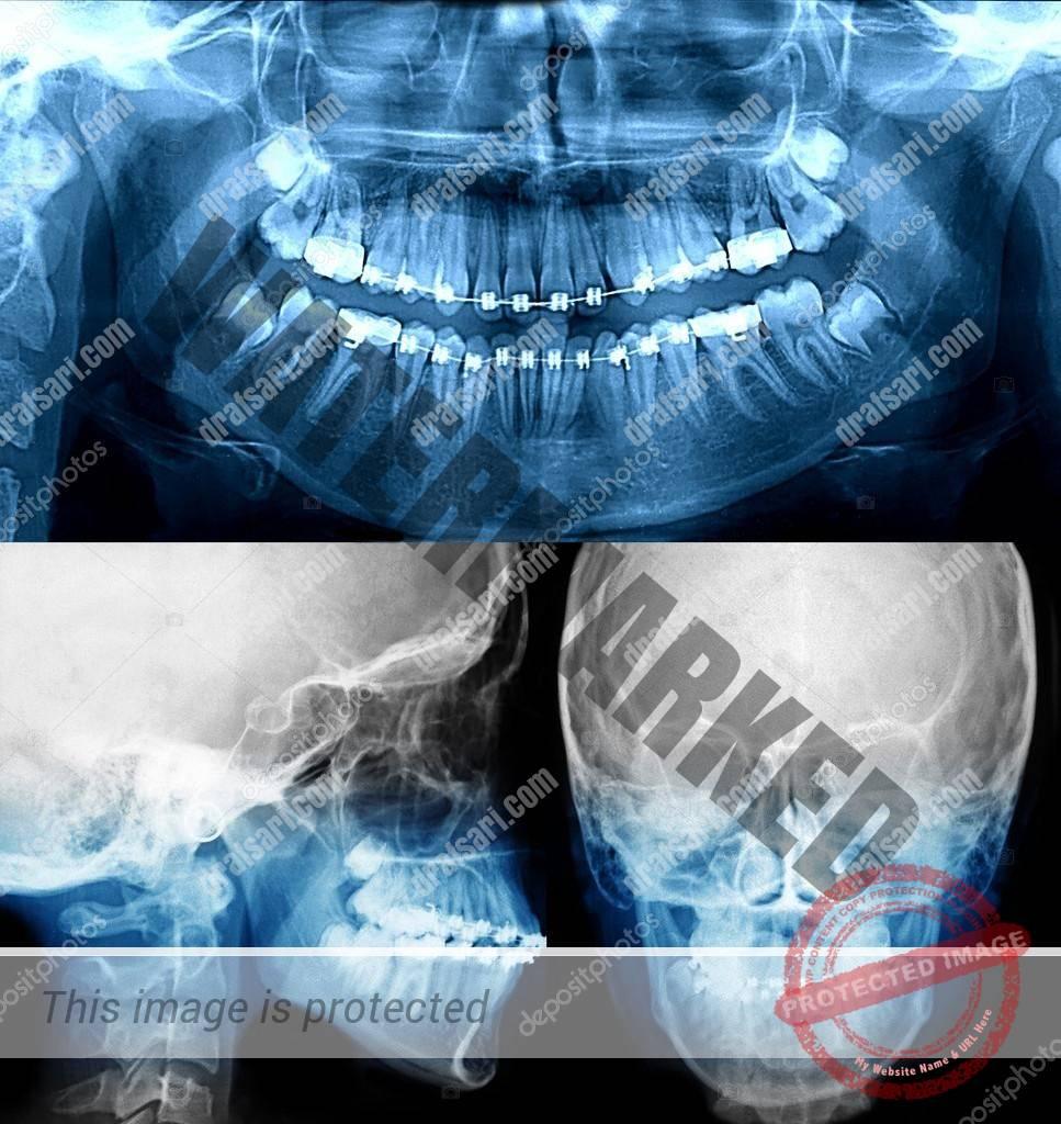 تصاویر رادیوگرافی در درمان ارتودنسی