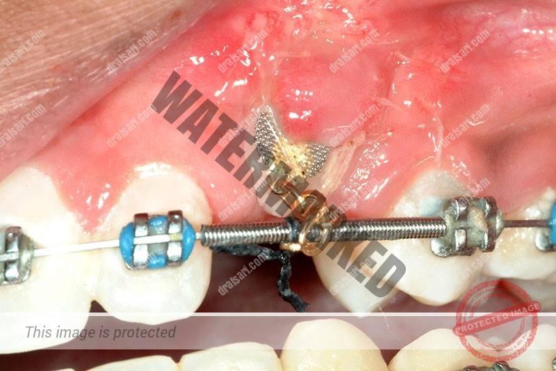 ارتودنسی و نهفتگی دندان