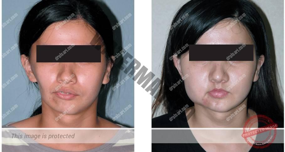 درمان عدم تقارن صورت و انحراف فک