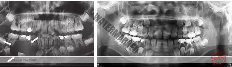 درمان دندان نهفته با کمک ارتودنسی