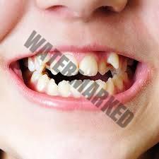 درمان دندان نهفته با کمک ارتودنسی – بخش دوم