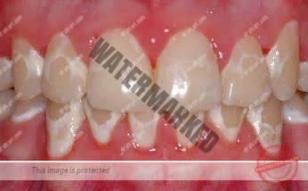 محافظت از مینای دندان در طول درمان ارتودنسی