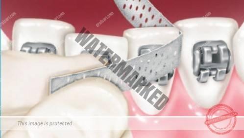 ارتودنسی و تراش دندان