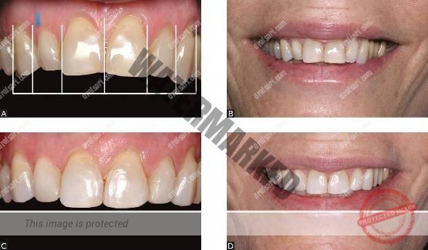 تراش مینای دندان برای اصلاح فشردگی دندان ها قبل از ارتودنسی
