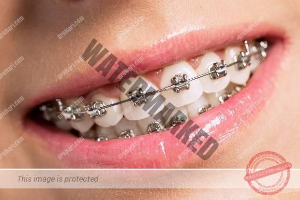 دندانپزشکی زیبایی یا درمان ارتودنسی؟ – بخش دوم