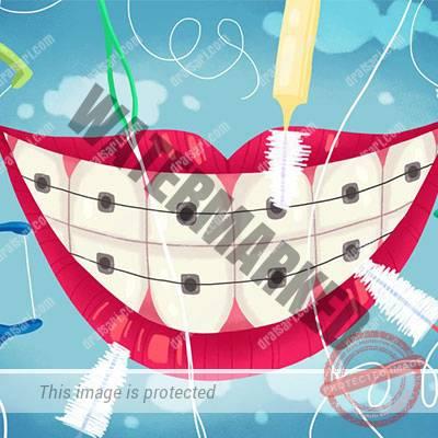 مسواک زدن و کشیدن نخ دندان صحیح کنار براکت ها