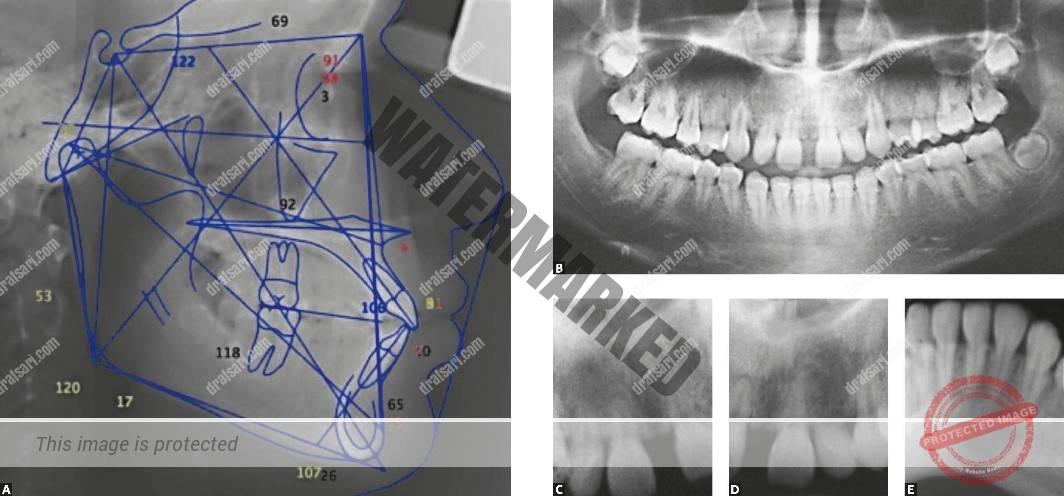 تحلیل ریشه دندان در طول درمان ارتودنسی