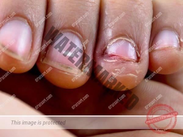 خطرات جویدن ناخن برای درمان ارتودنسی