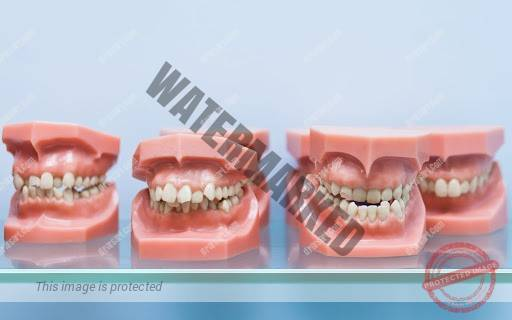 عادات بد دهانی که منجر به مشکلات ارتودنتیک می شوند