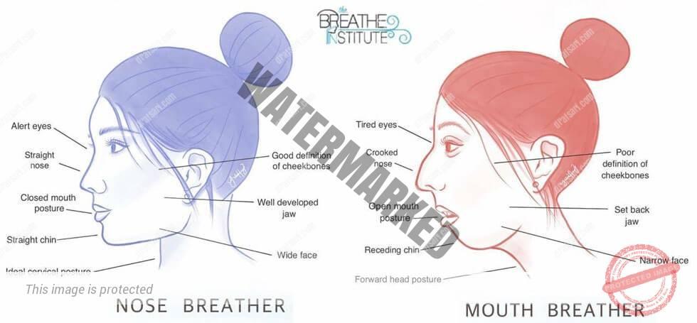 تنفس دهانی و درمان ان با ارتودنسی