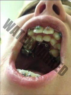 هایپردنشیا یا دندان اضافی