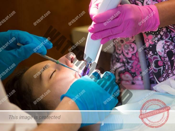 بی حس کننده دندانپزشکی