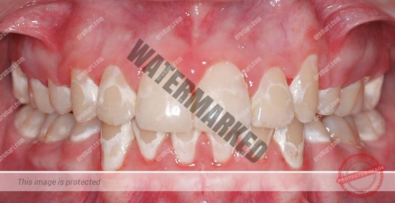لکه سفید روی دندان ها پس از ارتودنسی