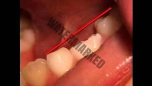 انکیلوز یا دندان فک جوش