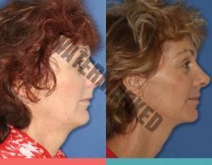 تاثیر ارتودنسی بر صورت و چهره