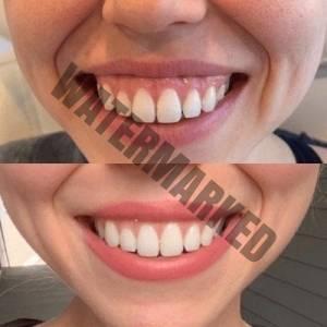 لبخند لثه ای درمان گامی اسمایل