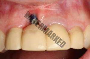 شکست ایمپلنت دندانی